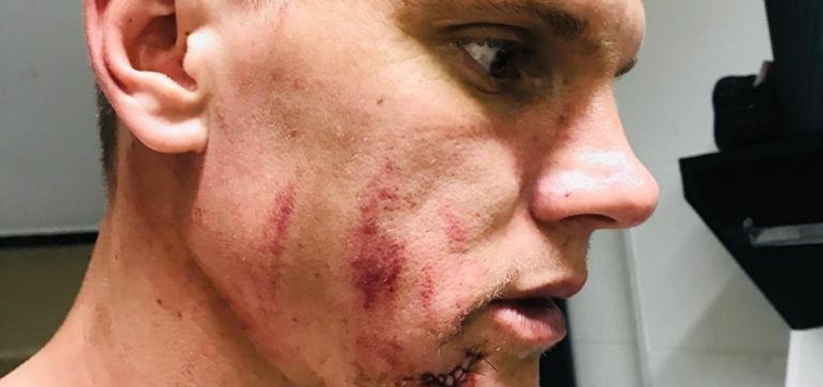 Goleiro do Bahia leva cinco pontos no rosto após choque com zagueiro do Vasco