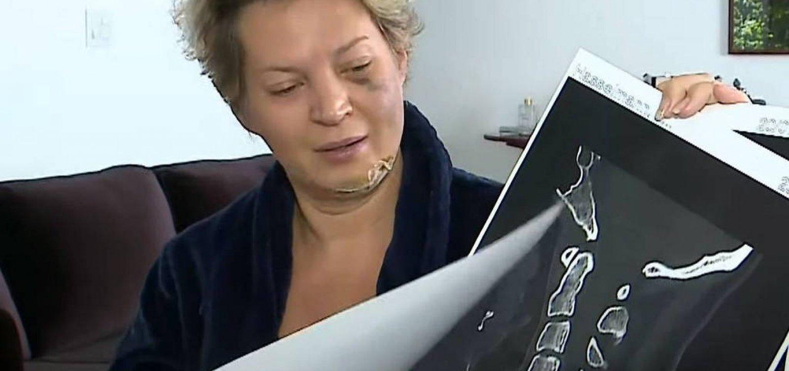 Joice Hasselmann denuncia ferimentos ao Ministério Público