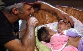 Gêmeas siamesas de Itamaraju seguem em estado grave