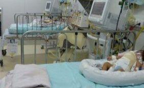 Siamesas baianas que foram separadas têm piora no estado de saúde