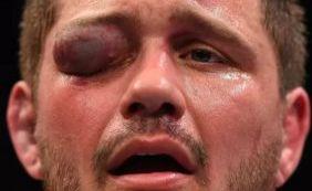 Lutador fica desfigurado após ser atingido no olho durante evento do UFC