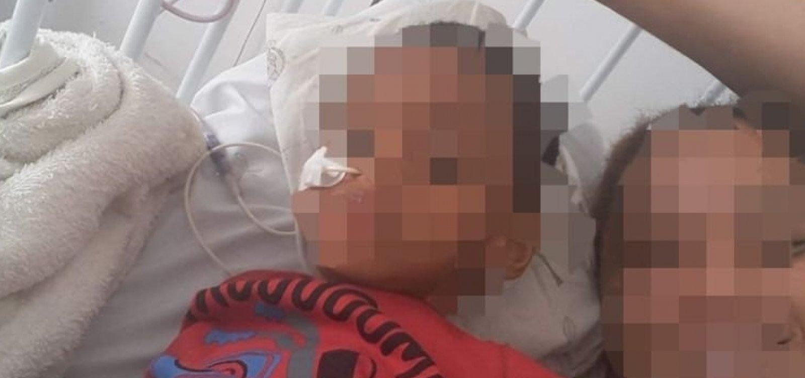 Mãe está revoltada com decisão judicial que negou benefício para filho com deficiência