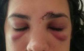 """Mulher é agredida depois de """"dar fora"""" em homem no Carnaval"""