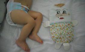 Bahia está em terceiro lugar com casos de microcefalia no país