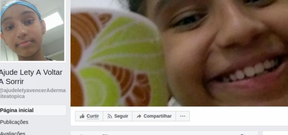"""""""Vaquinha online"""" arrecada recursos para tratamento de criança baiana com doença de pele grave"""
