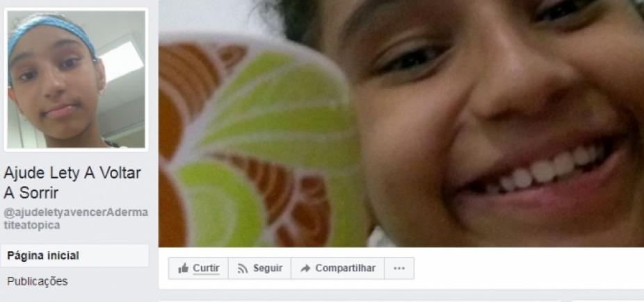 """""""Vaquinha online"""" para tratamento de criança com doença grave na pele bate meta"""