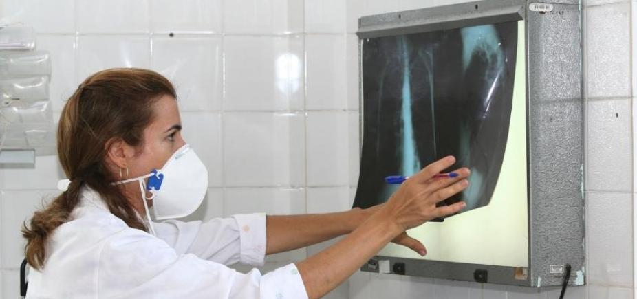 Bahia é o 2º estado do Nordeste com maior número de casos de tuberculose