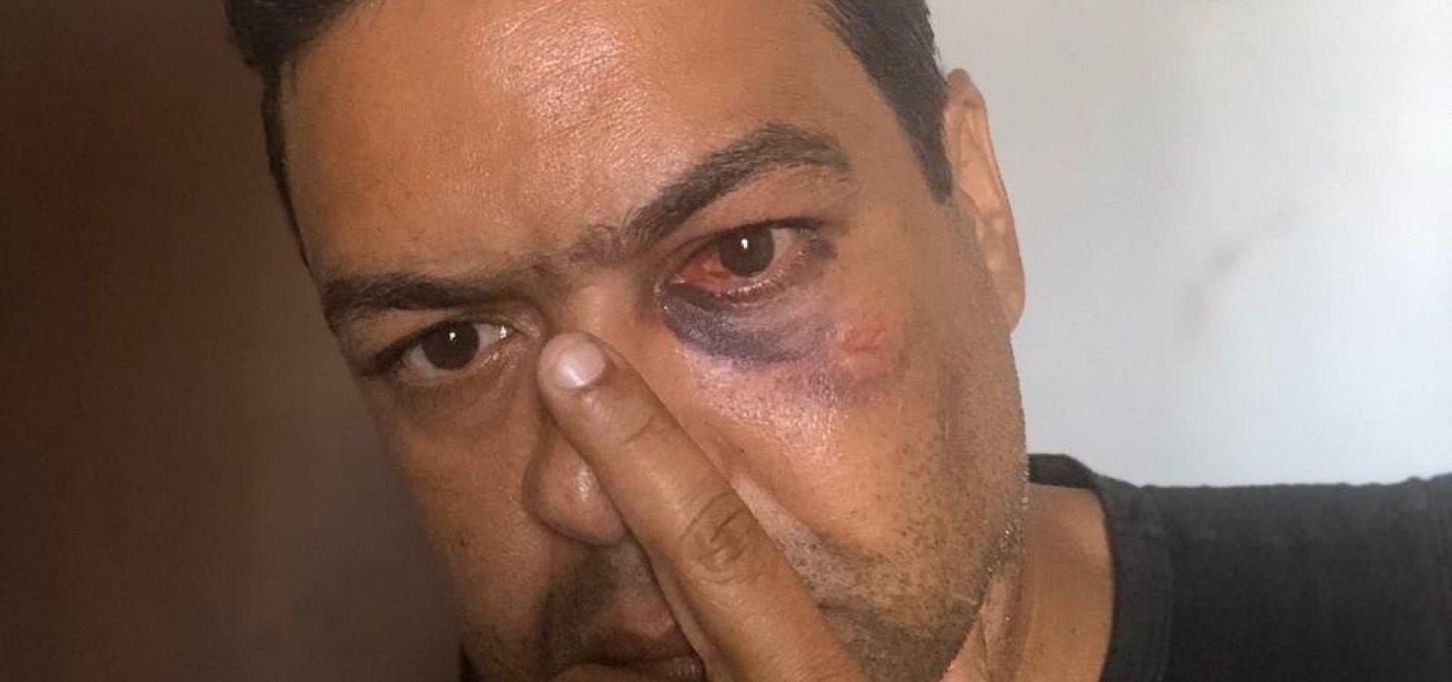 Simões Filho: Vereador é suspeito de agredir outro parlamentar durante reunião na CCJ