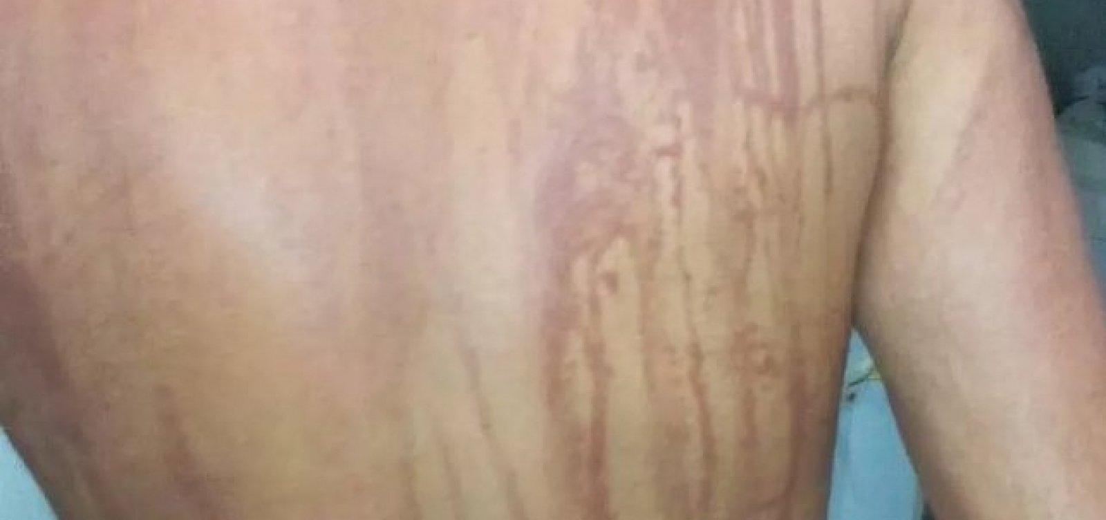 Ilhéus: secretaria descarta intoxicação por óleo em turista de MG